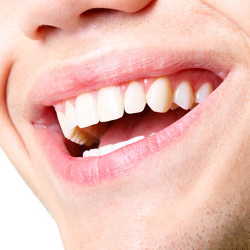 Orthodontic Treatment, Braces, Invisalign, Retainers